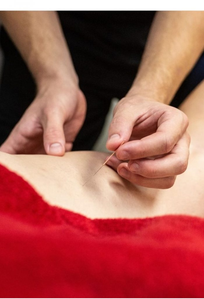 sports therapist does acupuncture in biggleswade